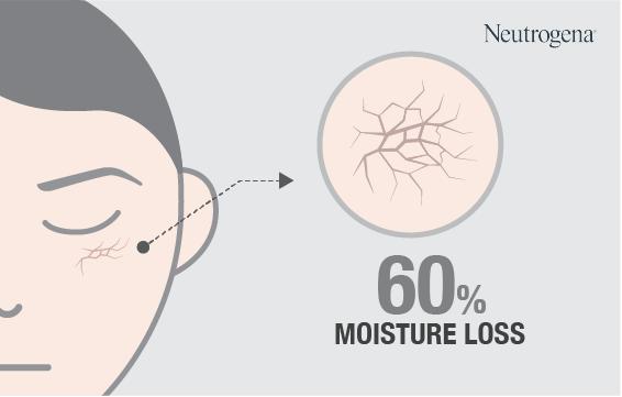 Masalah yang ditimbulkan polusi udara pada kulit